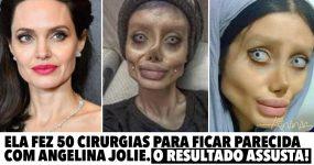Ela fez 50 CIRURGIAS para ficar parecida com Angelina Jolie.. mas o resultado é assustador!