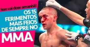 Os 15 Ferimentos Mais Feios de Sempre no MMA