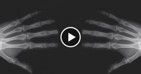 Afinal o que Acontece Quando Estalas os Dedos?