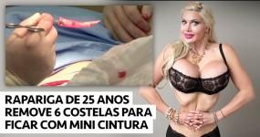 HOLY SHIT: Rapariga Remove 6 Costelas para Ficar… Assim