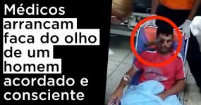 Médicos Arrancam FACA do Olho de um Homem Acordado