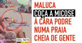 Maluca COÇA A MICOSE à Cara Podre numa Praia Cheia de Gente
